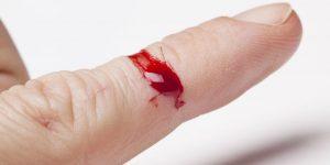bloody-finger